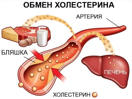 Народные средства от холестерина: самые эффективные методы снижения, как быстро снизить