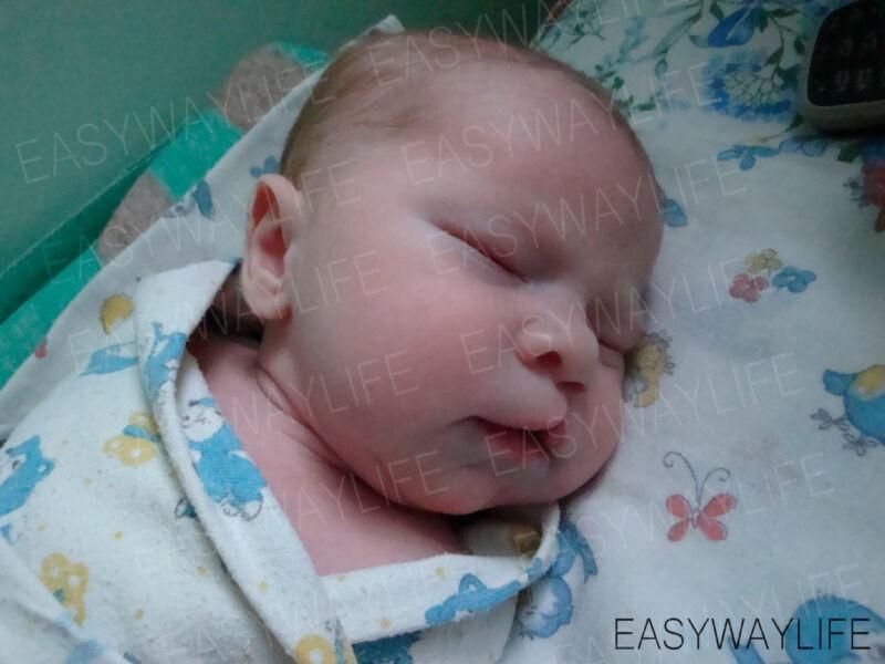 Расщелина губы и нёба у ребенка с ДЦП